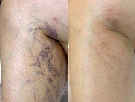 Laser Leg & Face Vein Treatment; does that really work?!