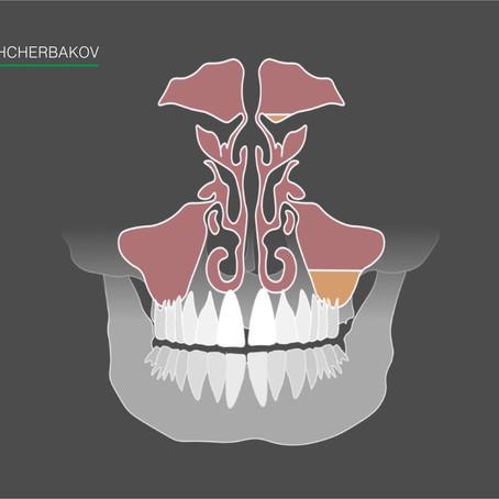 Одонтогенный гайморит – лечение без удаления зуба