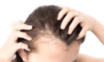 female-pattern-baldness-in-woman-s-scalp