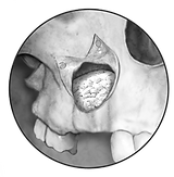 Sinus-Oss Grayscale.png