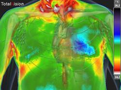 Heart-Case-study-1-Visceral