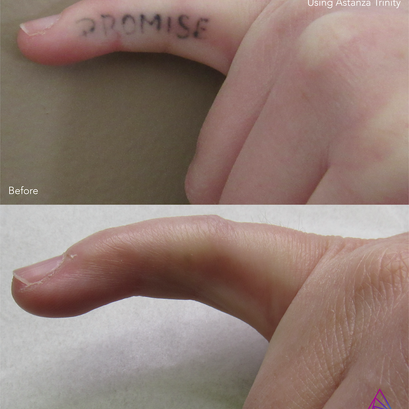 Tattoo Removal Ink-02.png