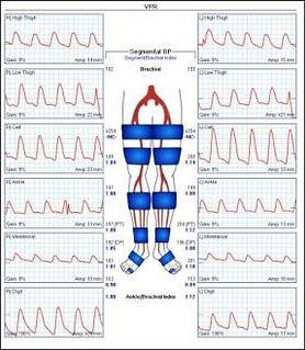ArterialExamoftheLegs-Results_edited.jpg