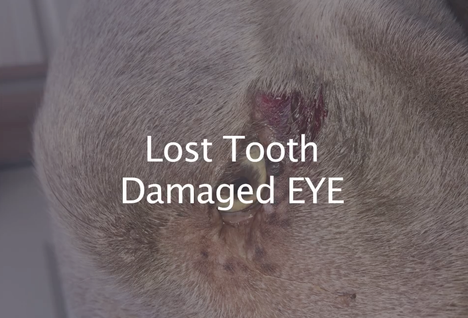 Lost Tooth Damaged EYE