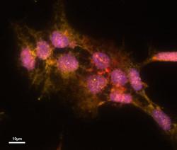 Bouquet of Stem Cells