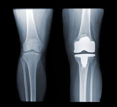 протез колено тот.jpg