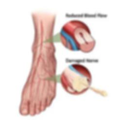 neuropathy nerve damage diagram