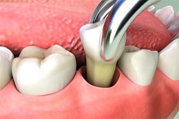 Image of pulling a tooth