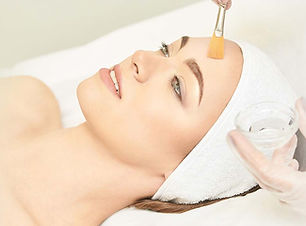 chemical-peel-Perth-cost.jpg