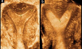 Uterus-3D.jpg