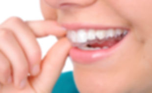invisible braces.jpg
