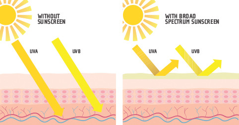 Light rays penetrating skin vs sunscreen protecting skin