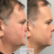 IPL facial redness, veins, brown spots