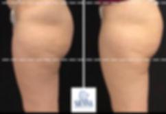 trusculptflex buttocks