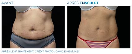 Emsculpt_PIC_Ba-card-female-abdomen-034_