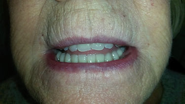 Dentures on implants