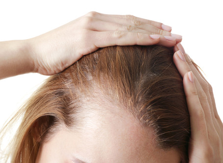 What Causes Female Pattern Baldness?