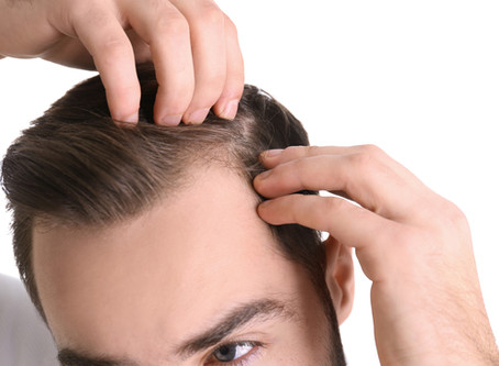 Could A Hair Transplant Work For You?