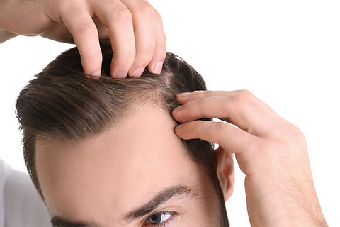 bigstock-Young-Man-With-Hair-Loss-Probl-