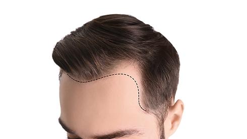 trapianto capelli cagliari | Wellssuite
