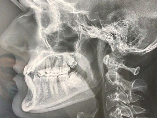 L'Osteopatia e i Disturbi Mandibolari