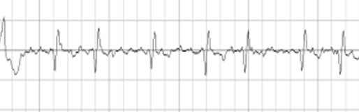 公立豊岡病院組合立豊岡病院 横手明義先生の御寄稿「長時間心電図モニタリングをうける意義」