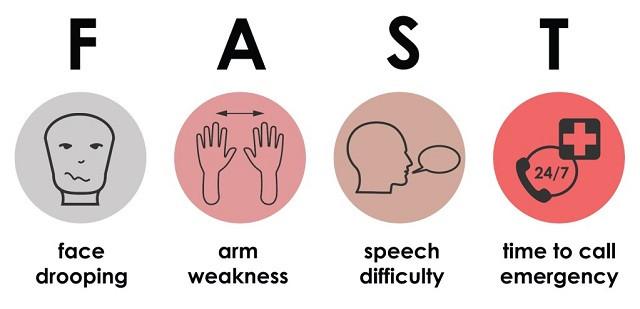 Stroke symptoms - FAST