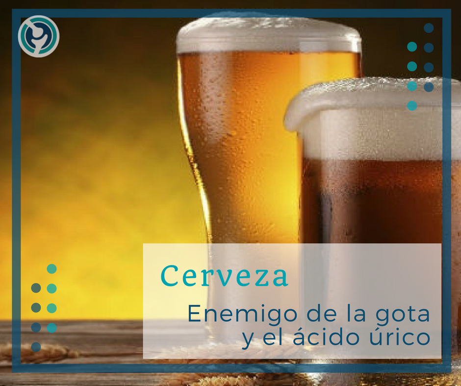la cerveza sin alcohol da acido urico