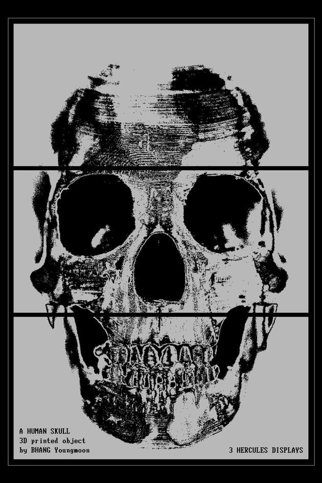 3D Printed Human Skull