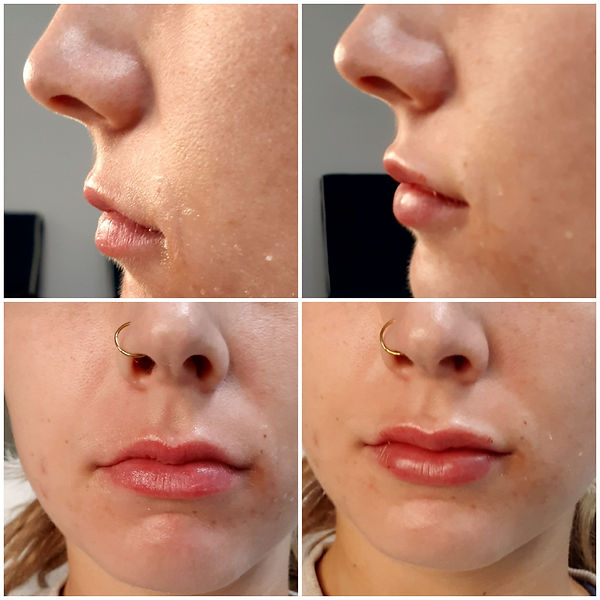 Before & After Lips Collage.jpg