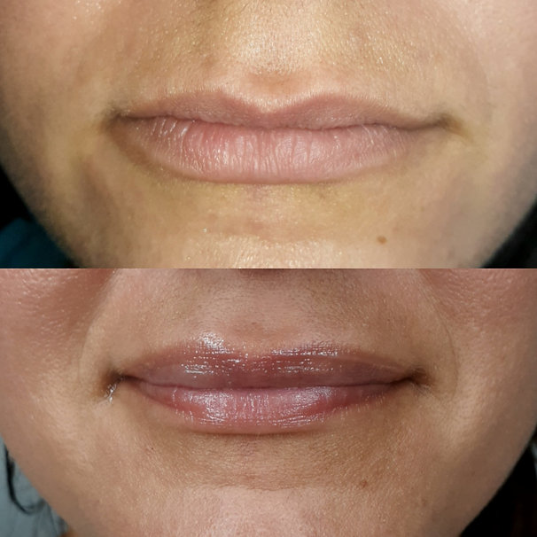 BEFORE & AFTER LIPS FRONT VIEW.jpg