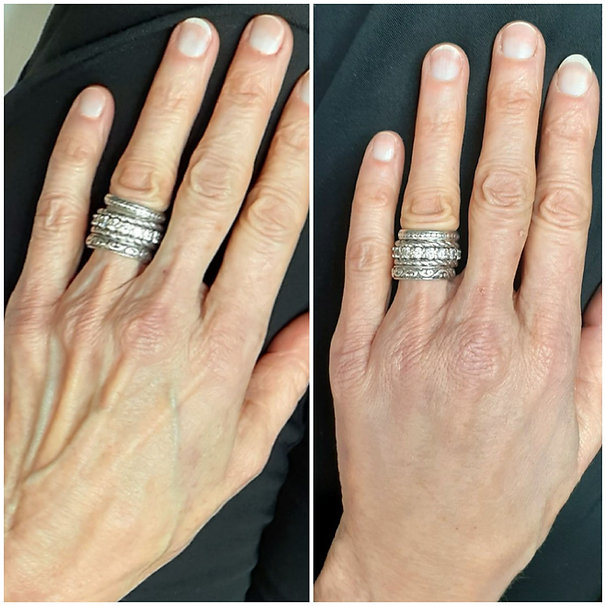 Hands Before and After.jpg