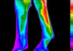 Was leistet eine Equine Thermografie?