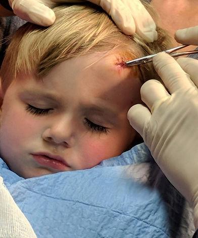 child suture.jpg