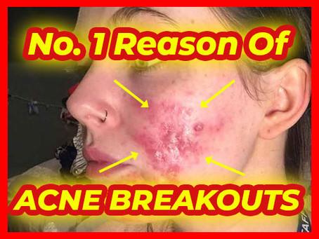 No. 1 Reason Causing Bad Acne Breakout!