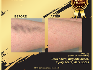 Your scar can be removed. By only one special clinic in Malaysia