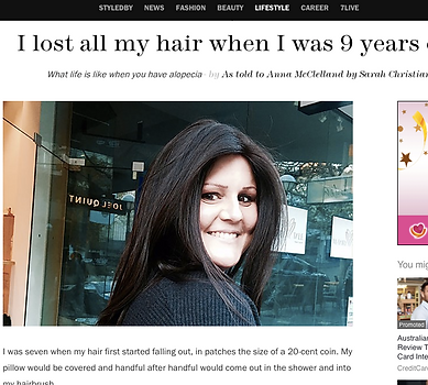 Marie Claire article on Alopecia