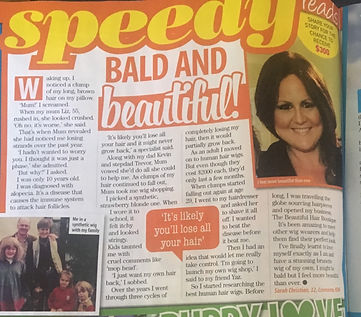 Sarah in That's Life talking wigs and hair loss