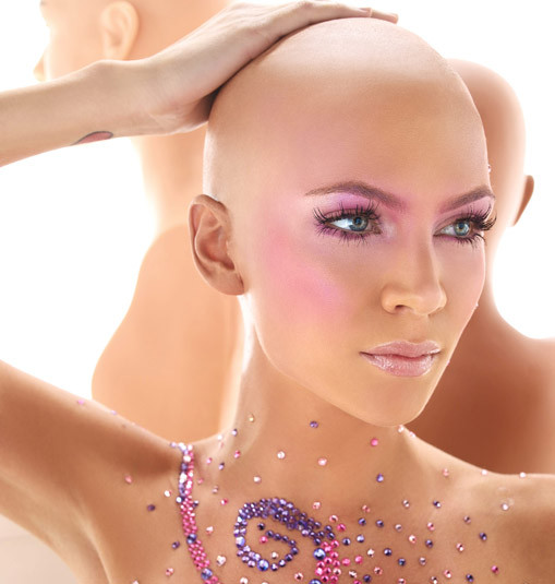Alopecia and hair loss in women