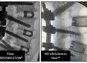 HD LifeSciences™ Hive™: Surgeon Reflections on Top Choice