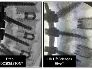 HD LifeSciences™ Hive™: Surgeon Reflections on Top Choice
