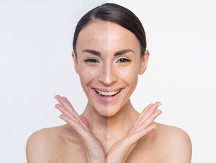 Traiter l'acné avec la médecine chinoise