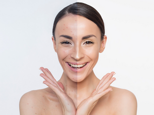 Treating Acne with Chinese Medicine