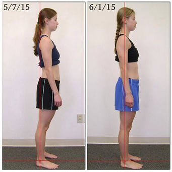 posture before and after 10 rolfing sessions