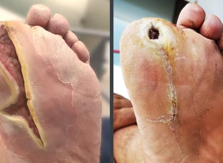 Odprta rana na nogi 🦵, diabetično stopalo 🦶 in Smrekovit izdelki