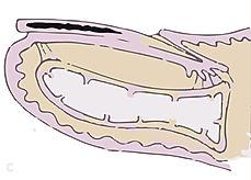 Medplastne glivice na nohtih