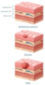 Bolečine v trebuhu zaradi rane na želodcu