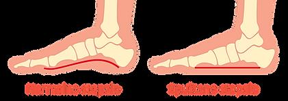 spušteno stopalo