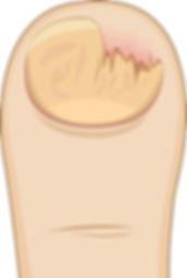 Glivice, povzročene z dermatofiti