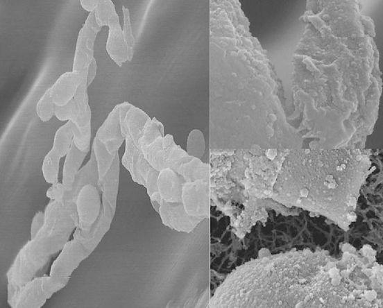 Elektronske mikrografije razpada hif in celične stene (Rautio et al. 2012)